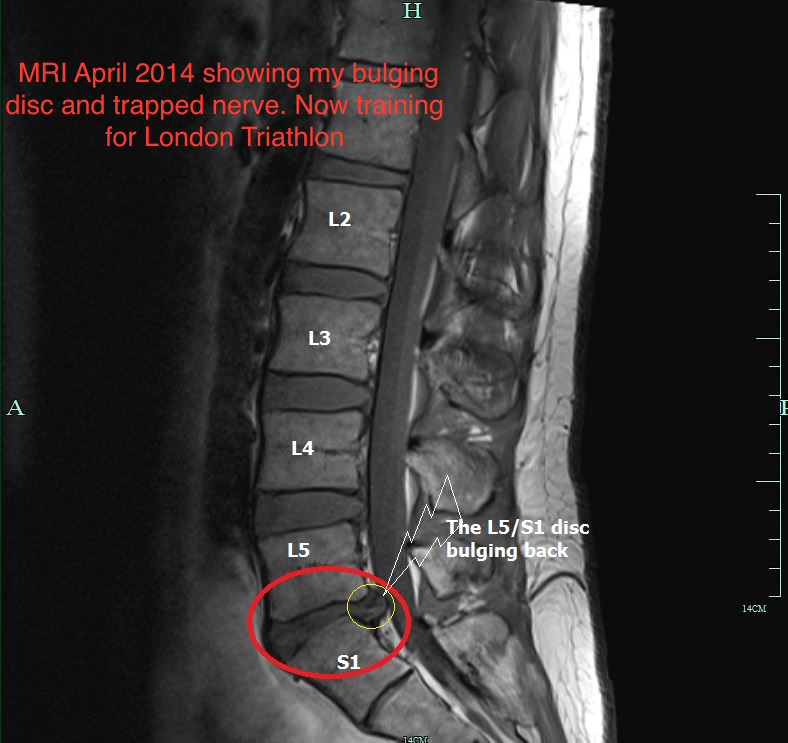 Can A Physio Have A Slipped Disc?
